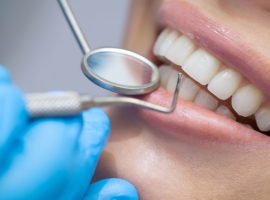 Dental Care for a Healthy Lifestyle
