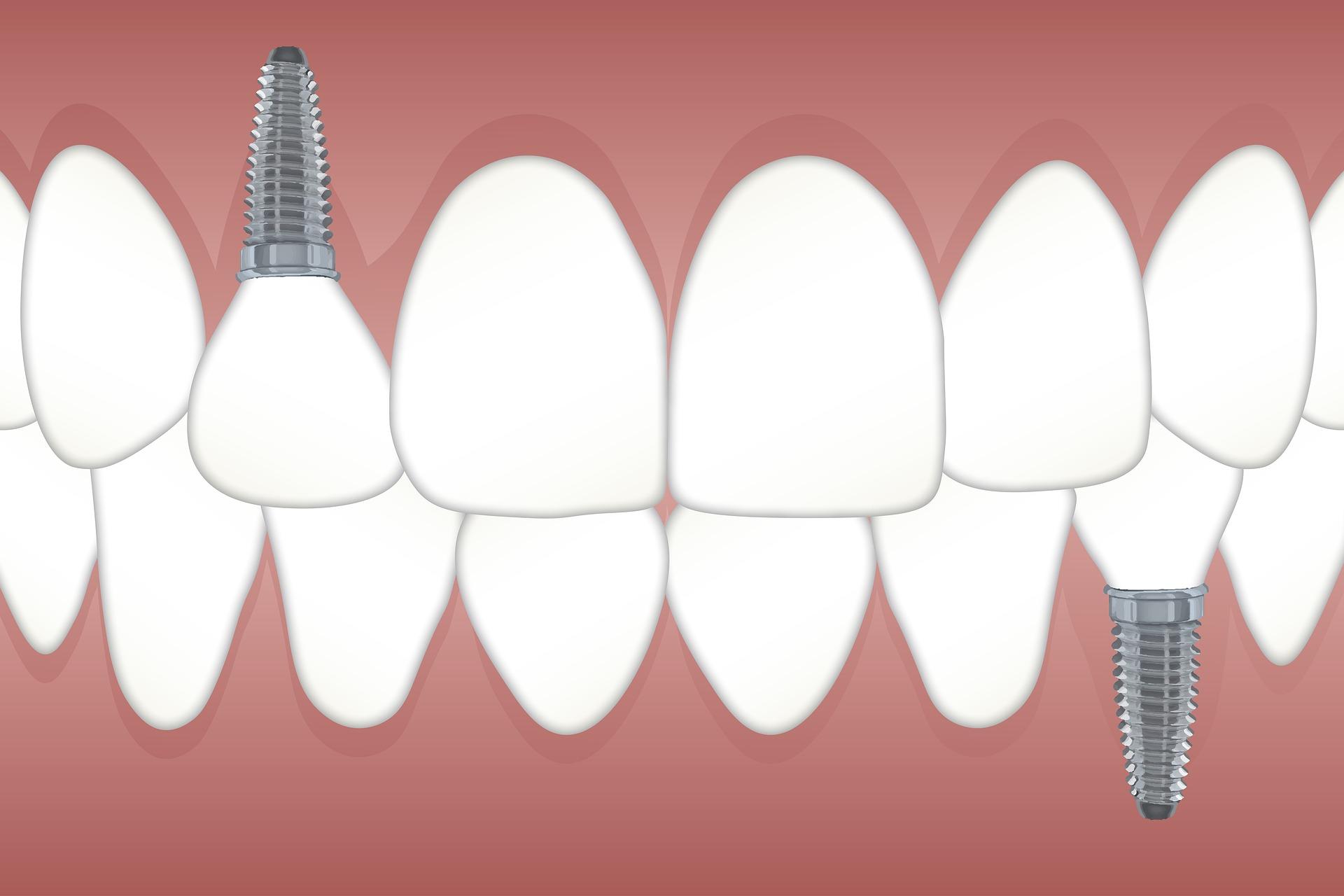 Dentist in Abuja
